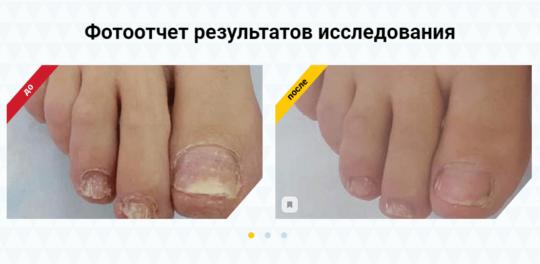 До и после применения Нормафит