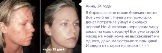 Отзывы о креме «Instaskin»