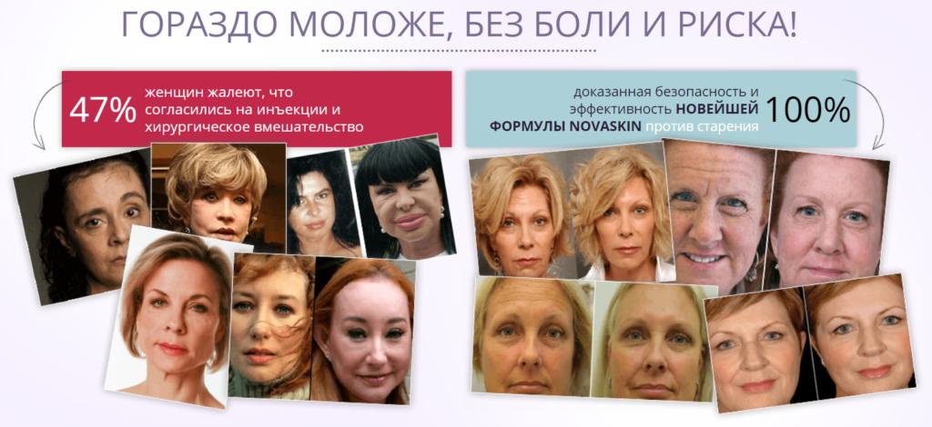 Эффективность Novaskin