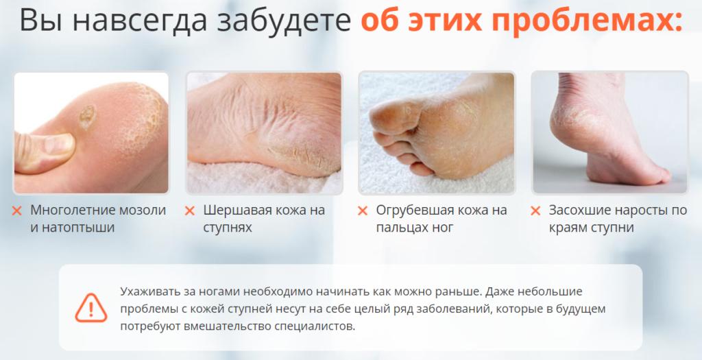 Проблемы огрубевшей кожи стоп