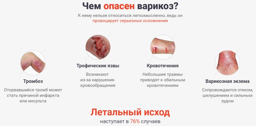 Опасность варикоза