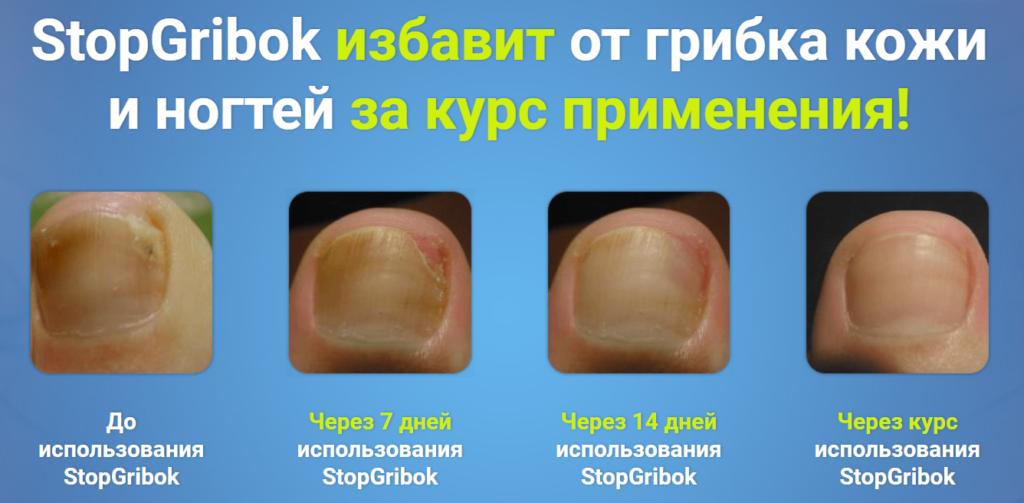 Эффективность применения геля СтопГрибок