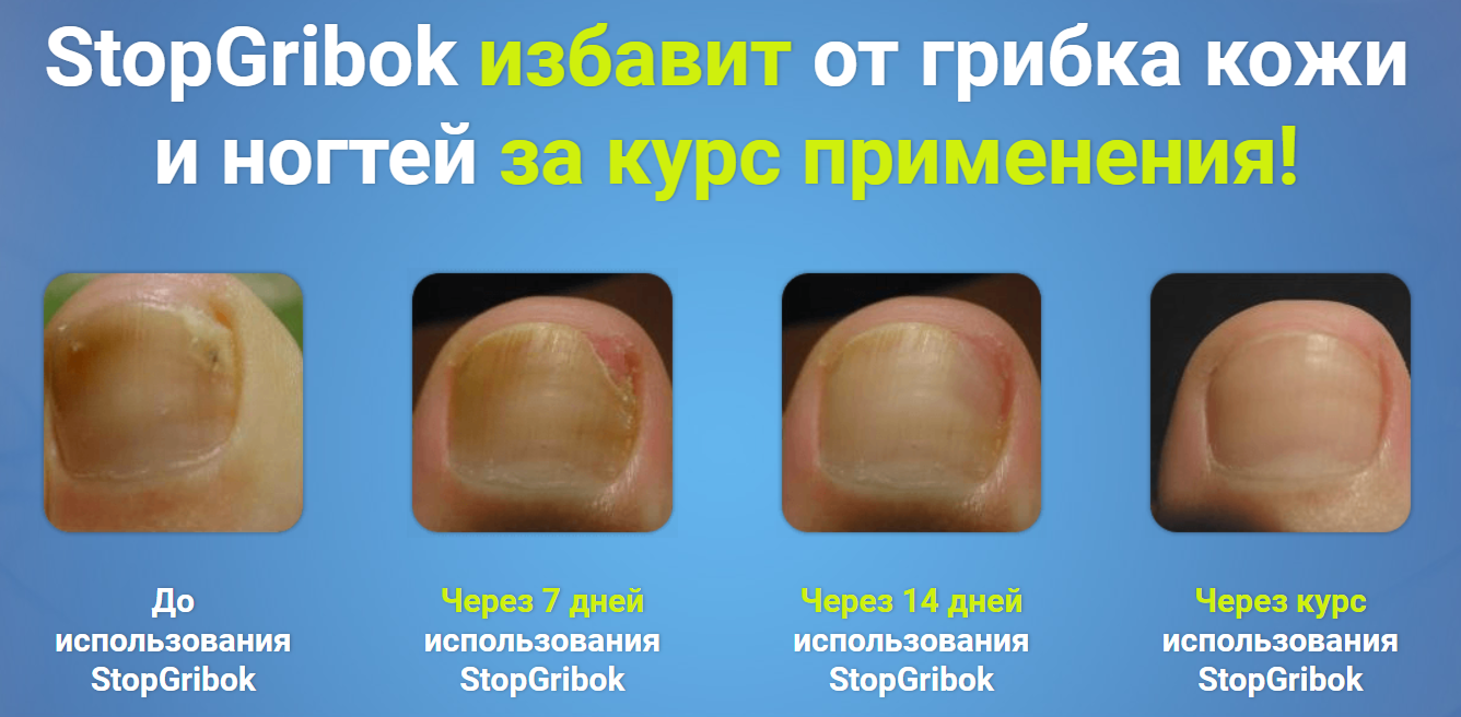 StopGribok от грибка в Октябрьске