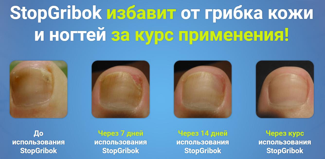 StopGribok от грибка в Киеве
