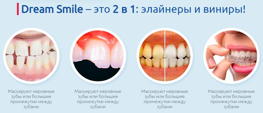 Эффективность виниров за зубов
