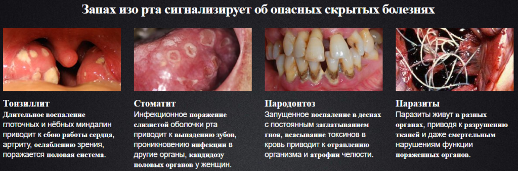 Опасные симптомы появления паразитов