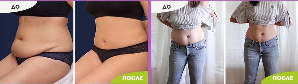 Вандер Патч - фото до и после