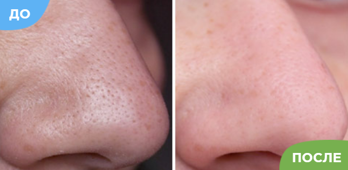 До и после нанесения маски Lanbeenа