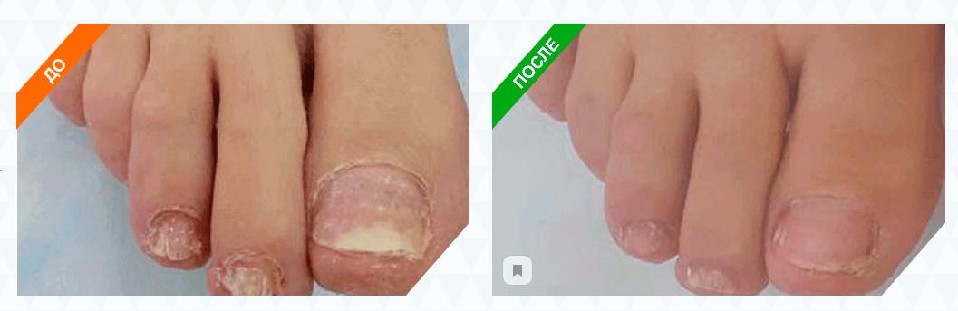 Результаты до и после применения препарата Экзин.